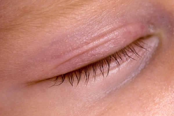 How can I treat a swollen eyelid?