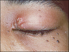 What are the best Antiviral medicine to take to help clear up herpes in the eye?