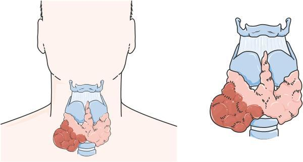 I had a partial thyroidectomy and the radioactive iodine treatment for the other side due to goiter-nodule with small cancer. Synthroid reduced-why?