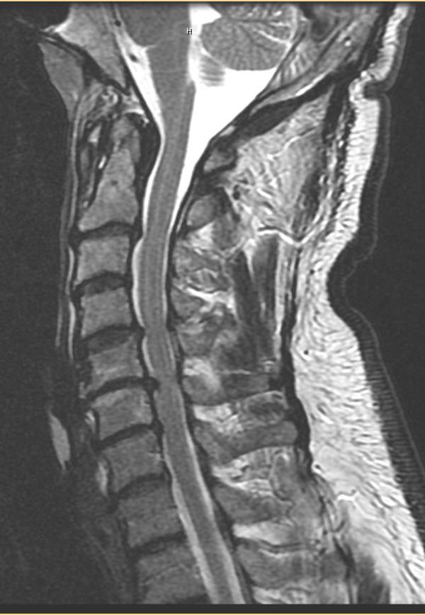 MRI = C3-4 disc herniationstenosis ap of 0.7cm? indention on spinal cord. Will the dr want 2 do surgery or try therapy first. CanTherapy make it worst