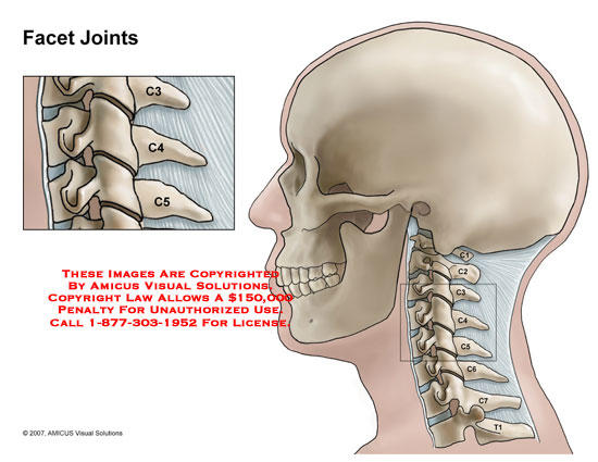 When I crack my neck side to side, I develop a burning neck pain and deep headache in one side, what is causing this?