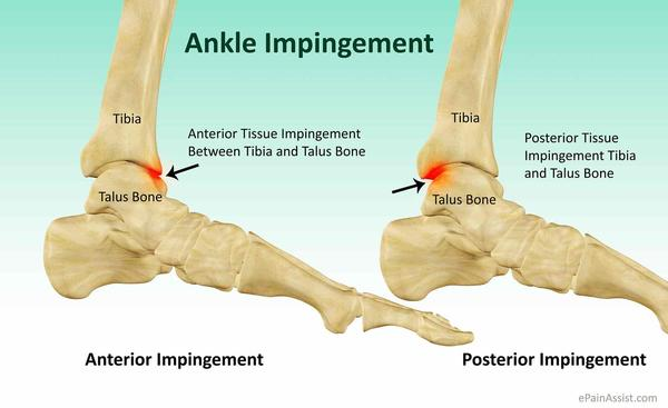 What is the process of getting surgery for Anterior Ankle Impingement? How long would someone be out of intense sports like gymnastics?