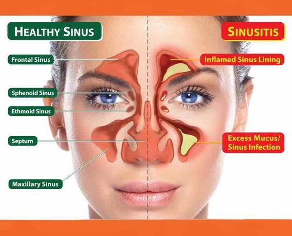 What kind of pain can sinus issues cause in your head?