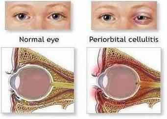 How can I know if the pain in my eye socket is orbital cellulitis?