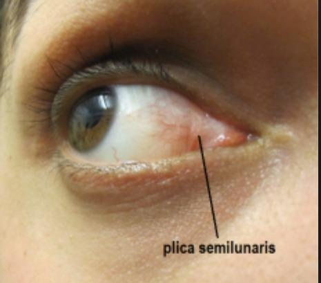 Eye irritated. Discharged @ 1st. Next day, inner eye corner stings w/white squishy bump in inner eye corner,plica semilunaris membrane. Getting larger