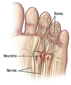 Neroma foot pain what is best treatment?