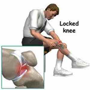 What causes throbbing along the joint line in the knee mostly medial?  Is there any treatment to straightening the knee when it is stuck?