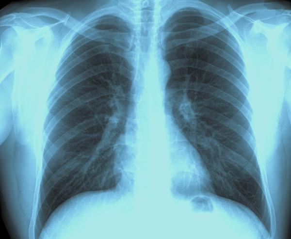 Chronic cough in a 65 year-old semi-retired computer software engineer living in Las Vegas. How to resolve the cough and prevent recurrences.....?
