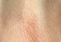 Hello , I have some itchy dry skin on my shoulders , my GP gave me Elozart , but it seems not to be working . What else can I do ?