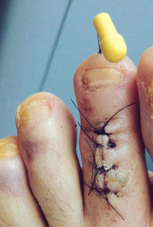 What is the best way to treat hammer toe (little toe)? I am using a silicone gel tube & wider shoes but still have pain.