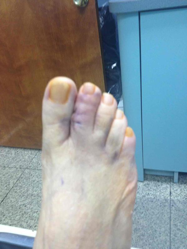 Are crutches needed for a broken toe?