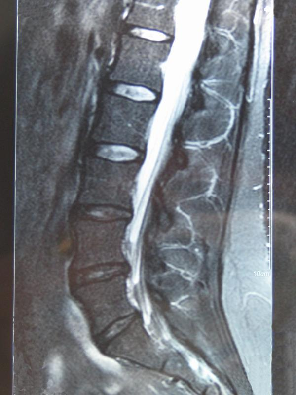 """Dr. Wrote """"possible bilateral S1 root lesions. Clinical correlation recommended."""" What does he mean? Dr. has retired and I do not have access to him."""