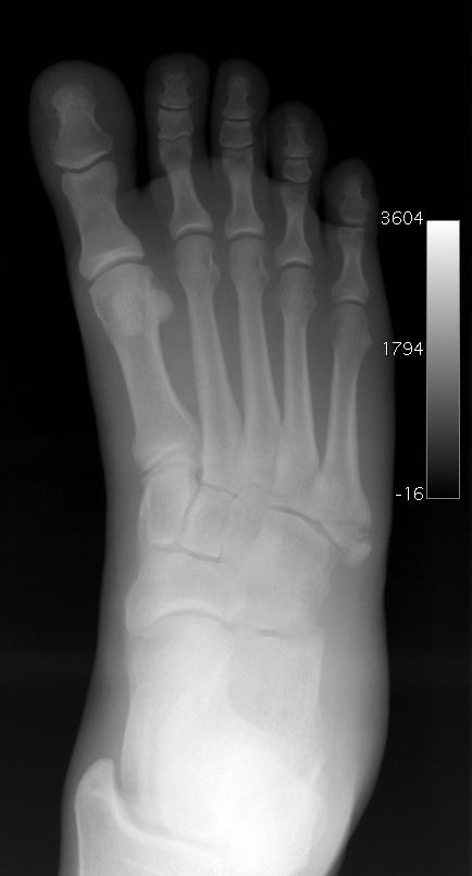 What are the tests for broken foot?