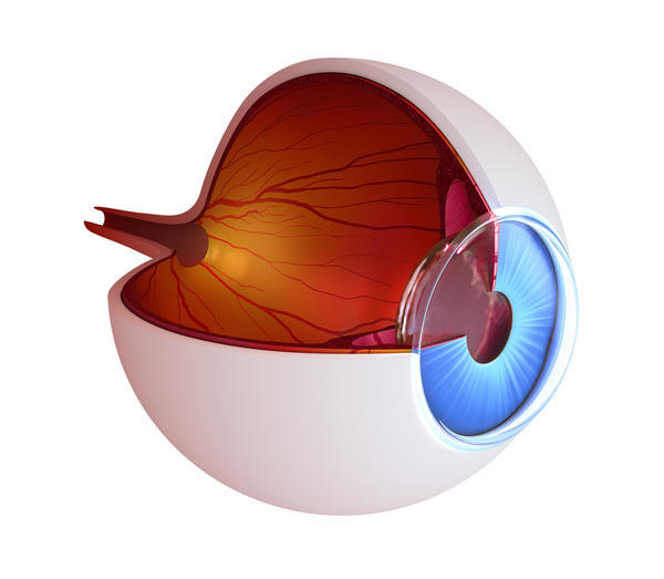 I have always had many floaters in my eyes but lately I have a very dark one in my left eye that I can see even when I close my eyes. Retina tear?