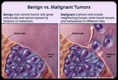 How much danger is associated with a benign tumor?