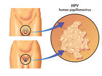 Is it true hpv can clear itself? Positive for 15 yrs, paps still normal. Only one partner past 15 yrs. Can he have it and be reinfecting me? Confused