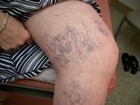 I am underweight and have spider veins?