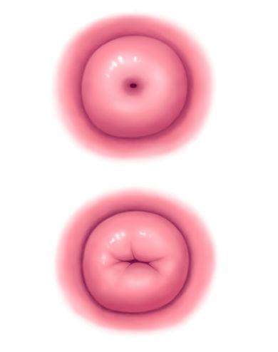 There's a tiny slit on my cervix but it feels closed unsure whether being able to feel the slit means its open or closed?
