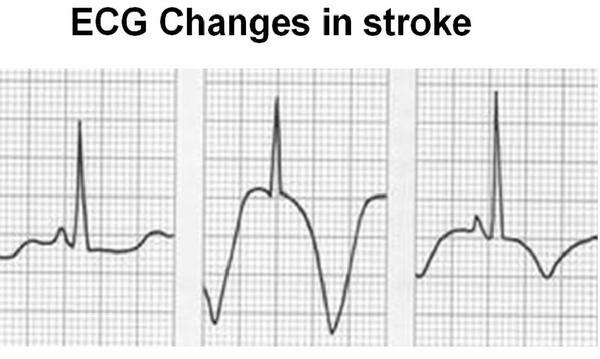 Will Autonomic Function Testing also show any possibly heart abnormalities? Can ANS dys. Cause abnormal EKG in otherwise health heart? Connected?