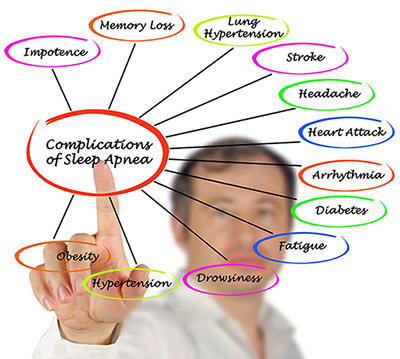 Does sleep apnea cause heart disease very quickly(few years)?  Or is heart disease more associated with long standing sleep apnea(many years/decades)?