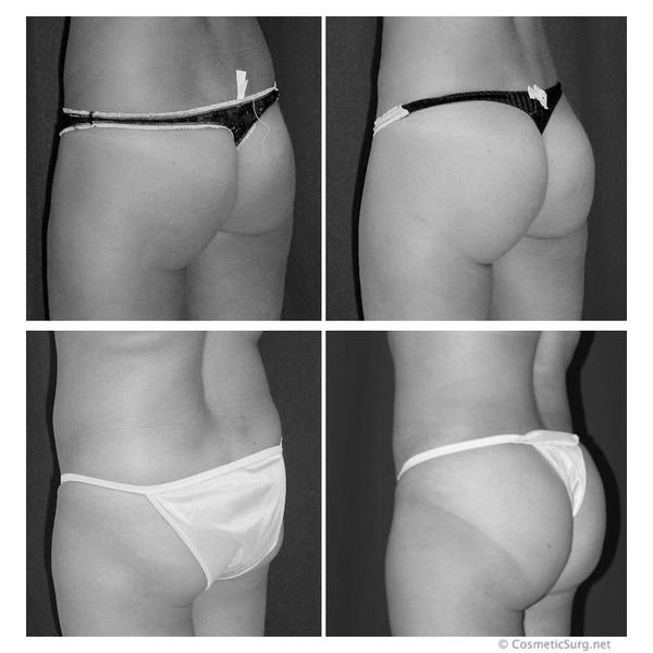 How long can I expect a Brazilian butt lift to last?