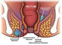 I have a boil close to my anus how can I get rid of it at home?