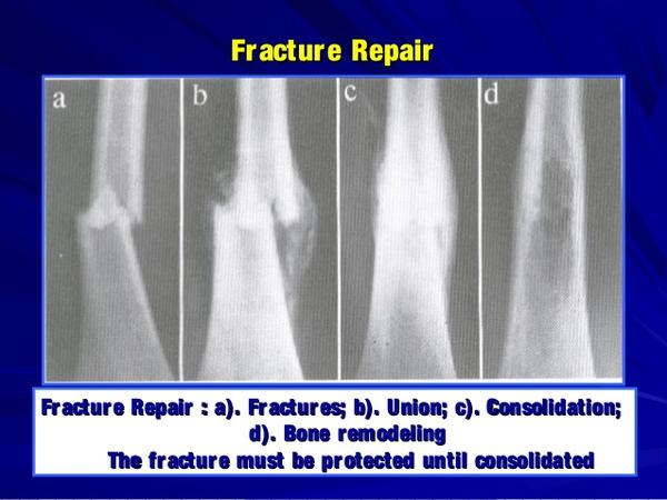 Have a subluxing/snapping extensor tendon in foot after injury (by 4th met). Doc said only cure for this is surgery. Is this true?