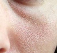 Which deficiency causes large pores on facial skin?