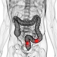 Please explain what are some symptoms & cure for ulcerative colitis?