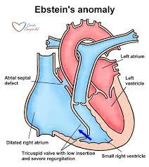 Can women with a (VSD) Ventricular septal defect/ebstein anomaly still have a normal pregnancy as the murmur is harmless? Also, what are some risks?
