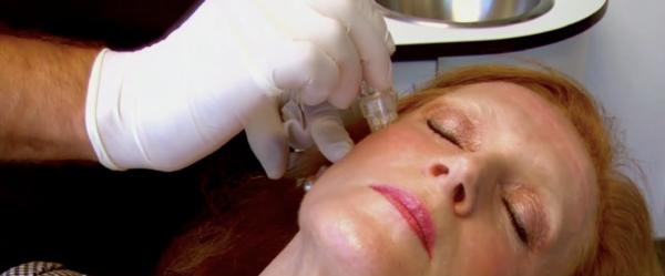 Can you tell me how to treat melasma without surgery or lasar?