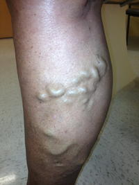 What can lead to, or is associated with Varicose veins?