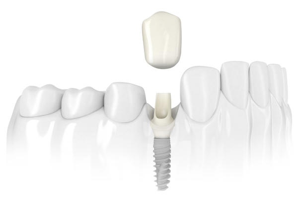 How painful it is to get dental implants?