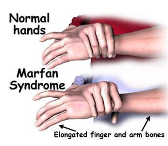 How does a baby get tested for Marfan syndrome?