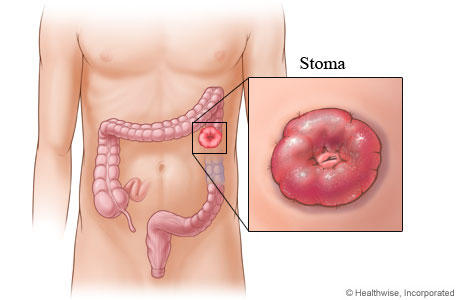 How is a colostomy usually done?