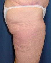 What is the best way to get rid of thigh fat?