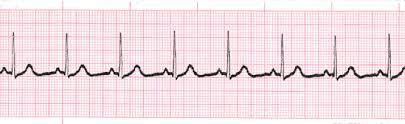 Is it possible for arrythmia to cause dyspnea?