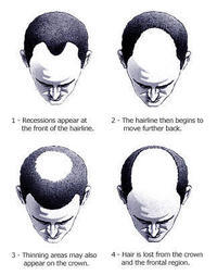 What is the talk of the hair loss treatment ?