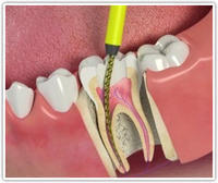 I need root canal. How painful is this?