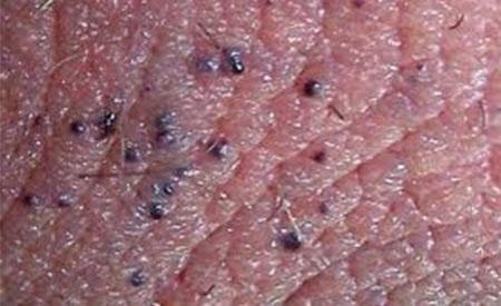 I have around three red (like blood filled) vesicle on my scrotum. It is only as big as pen points and appears somewhere to where the vessels run.