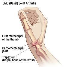 Does subluxation of trapezium from myocardial  joint in my thumb mean  arthritis. If not, what does it mean? How to treat?