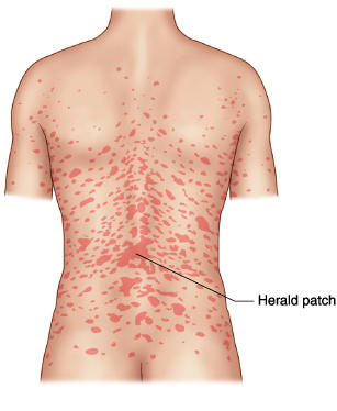 What is pityriasis rosea like?