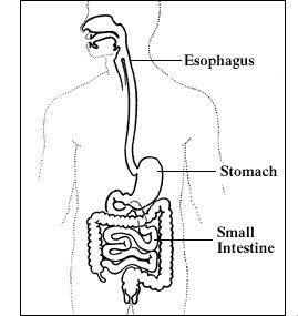 Can you explain  gastroparesis?