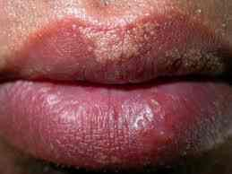 Dermatology pale lips with little white spots on the?