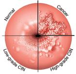 If someone has the HPV virus but their pap smear is normal, what treatment is available to get rid of the HPV virus?