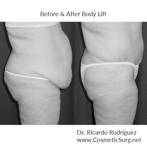 Should i try exercise before considering a body lift? Is there any way to get rid of my sagging skin through exercise, or is a body lift necessary?.