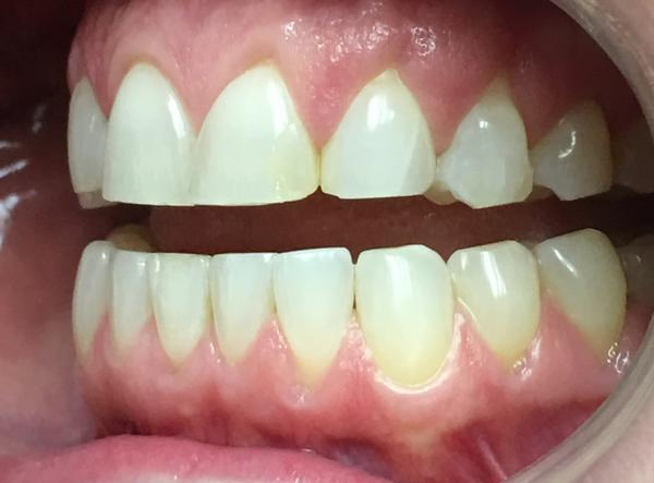 Can teeth whitening bleach damage teeth? Is it good to whiten teeth? What is the best less expensive way to do it?