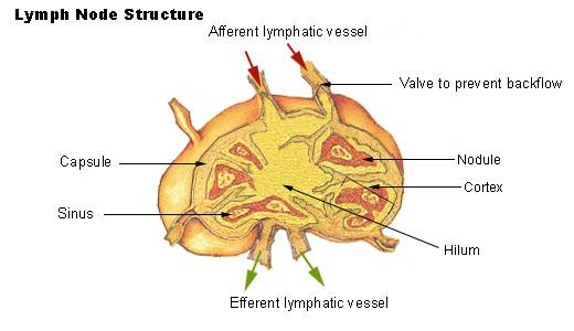 Does  lymphangitis usually cause pain of the swollen lymph node?