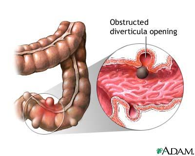 Is diverticulosis the name of the health condition when one cannot eat seeds?