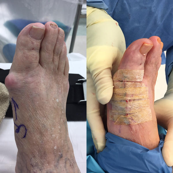 I'm 7.5 weeks post hallux rigidus and bone spur removal. The tip and underside of big toe is numb and tingles. Also my 